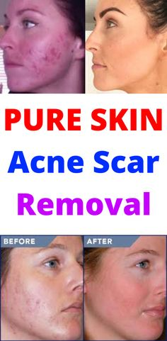 Acne and Pimples Remedies. All-natural ways to eliminate and avoid Pimples. Brown Spots On Skin, Skin Spots, Acne Spots, Dark Spots, Brown Skin, Skin Bumps, Skin Moles, Acne Skin, Warts On Face