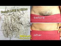 In just 5 Minutes - Remove PUBIC HAIR Permanently / No Shave No Wax ll N...