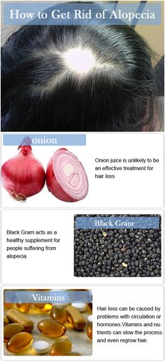 How to Get Rid of Alopecia