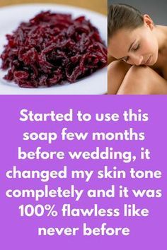 Started to use this soap 1 month before wedding, it changed my skin tone completely and it was flawless like never before Beauty Tips For Skin, Skin Tips, Beauty Skin, Skin Care Tips, Beauty Ideas, Diy Beauty, Organic Skin Care, Natural Skin Care, Natural Makeup