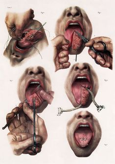 Vintage Medical Human Tongue Surgery Techniques Poster Re-Print Medical Art, Medical Science, Medical History, Medical Posters, Human Figure Drawing, Figure Drawing Reference, Anatomy Reference, Anatomy Art, Anatomy Drawing