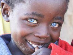 criança e vive em Marimani Theuns, Zimbabwe.