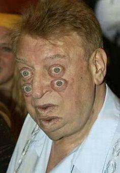 drunk eyes