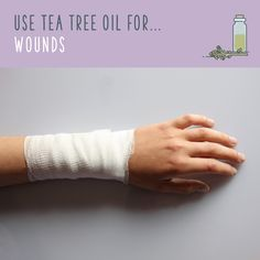 Tea tree oil uses are amazing! Discover tea tree oil benefits and the uses for tea tree oil that will have you stockpiling it. Homemade Essential Oils, Essential Oils Cleaning, Young Living Essential Oils, Burn Wound Care, T Tree Oil, Lavender Oil Benefits, Tea Tree Oil Uses, Easential Oils, Skin Burns