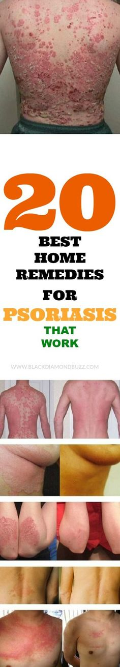 Psoriasis Free - 20 Best Home Remedies For Psoriasis That Work. - Professors Predicted I Would Die With Psoriasis. But Contrarily to their Prediction, I Cured Psoriasis Easily, Permanently & In Just 3 Days. Psoriasis On Face, Psoriasis Symptoms, Psoriasis Diet, Psoriasis Lotion, Severe Psoriasis, Home Remedies For Psoriasis, Natural Home Remedies, Autogenic Training, Psoriatic Arthritis