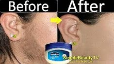 Vaseline to remove unwanted hair