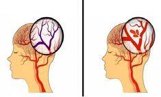 Hölgyek figyelem! Ezt a 7 tünetet tapasztalják a leggyakrabban a nők stroke során!