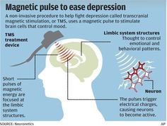Transcranial magnetic stimulation (TMS) therapy uses short pulses of magnetic fields to stimulate nerve cells in the area of the brain thought to control mood. Health Talk, Brain Health, Mental Health, Transcranial Magnetic Stimulation, Diy Peeling, Magnet Therapy, Limbic System, Stress, Depression Symptoms