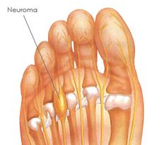 What is Morton's Neuroma