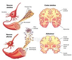 Illustration about Medical illustration of the symptoms of Alzheimers disease. Illustration of cerebral, nerve, hippocampus - 31703426 Alzheimer's Symptoms, Cerebral Cortex, Brain Diseases, Alzheimers Awareness, Stem Cell Therapy, Neurotransmitters, Medical Illustration, Thoughts, Places