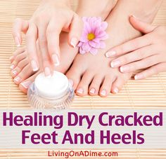 Healing Dry Cracked Feet And Heels- Just 2 Ingredients!
