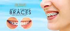 Align Your Teeth with the Ceramic or Metal #Braces Starting from 799 AED. Includes #Scaling + #Cleaning + #Polishing + #Consultation at Dr Ismail #Polyclinic. Valid for Adults & Kids in 2 Locations.  To check/buy the #deal, click on the below link http://www.kobonaty.com/en/deal/dr-ismail-polyclinic/1899/