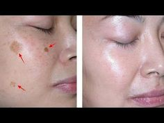 How to Remove Brown Spots on Face In Just 2 Nights - Homemade Methods) ! Today we're going to show you how to prepare several recipes that will remove dar. Age Spots On Face, Brown Spots On Face, Dark Spots, Skin Spots, Herbal Remedies, Natural Remedies, Holistic Remedies, Bleaching Your Skin, Cucumber Mask