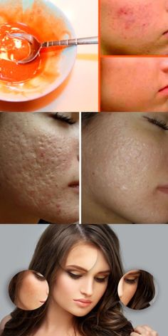 Remove scars and blemishes on your face with this .- Удалите шрамы и пятна на лице с помощью этой… Remove facial scars and blemishes with this mask. Facial Scar Removal, Facial Scars, Beauty Care, Beauty Skin, Diy Beauty Tutorials, Perfect Eyebrows, Recipe Of The Day, Healthy Lifestyle, Food Photography