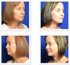 Burnham Systems Facial Rejuvenation