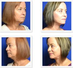For dramatic facial rejuvenation, a facelift is sometimes paired with other cosmetic procedures like liposuction to remove excess fat or facial injectable to refresh other areas upon the face. #DrErfani #SpiritLift