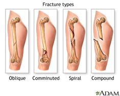 Fracture types (1) - from MedlinePlus