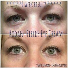Here is why Redefine Multi-function Eye Cream works well! It utilizes powerful peptides which works to minimize the look of crow's-feet and helps to reduce the appearance of dark circles and puffiness while special optical diffusers noticeably brighten the eye area. This formula is also ideal for maintaining the delicate skin around the eyes. https://iarman.myrandf.com/Shop/Product/AAEY015