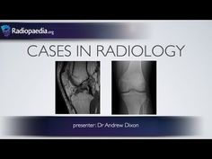 An acute knee injury MRI case containing basic and advanced components. Includes three related plain x-ray cases. Presented by Dr Andrew Dixon. Human Joints, Radiology Imaging, Knee Injury, Medical Students, Channel, Education, Youtube, Adobe Photoshop, Doctors