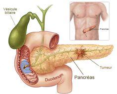 Prenez vite ce cocktail anti-cancer du pancréas