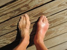 Natural Remedies For Swollen Feet 9 Home Remedies For Gout Pain - There is nothing good about gout. Essentially a short-term form of arthritis, gout is caused by elevated levels of uric acid in the blood stream Home Remedies For Gout, Gout Remedies, Headache Remedies, Natural Home Remedies, Herbal Remedies, Natural Treatments, Fracture De Fatigue, Signs Of Gout, Young Living Oils