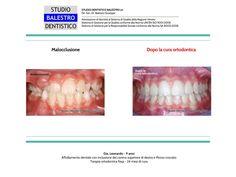 Casi clinici ortodontici Canino incluso http://www.studiodentisticobalestro.com/2012/11/casi-clinici-ortodontici-morso-crociato_25.html