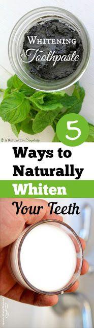 5 Ways to Whiten Your Teeth Naturally | Pinterest Goodies