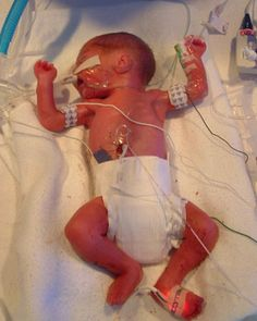 My Preemie Born 30 Weeks Gestation 2lb 6oz Amp 15in Long 9