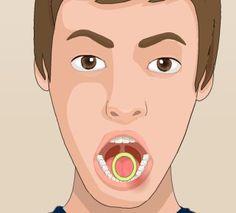 Çürük Diş Çekimi