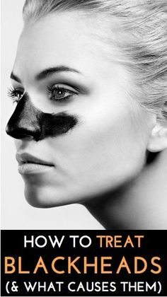 Expert tips on how to clear up blackheads (and what causes them)