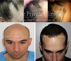 Before and After a FUE #HairTransplant at The Private Clinic of Harley Street - female and male patient.  We specialise in minimally invasive and non-invasive cosmetic treatments, hair transplants, varicose vein treatments, #snoring treatments, cosmetic surgery and plastic surgery - including the minimally invasive #VASERLipo. Find more: http://www.theprivateclinic.co.uk/