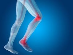 3 ways to ward off joint pain that comes from rheumatoid arthritis! Cellulite, Cartilage, Nutrition, Rheumatoid Arthritis, Feet Care, Natural Medicine, Ballet Shoes, Health Fitness, Healthy