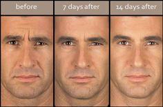 #Botox for men
