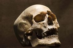 Charity store staff find human skull among donations