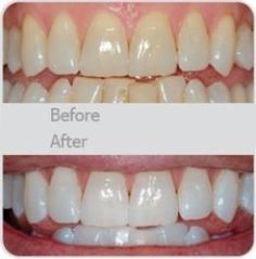 My dentist actually told me about this. Use a little toothpaste, mix in one teaspoon baking soda plus one teaspoon of hydrogen peroxide, half a teaspoon water. Thoroughly mix then(Baking Face White Teeth) Beauty Care, Diy Beauty, Beauty Hacks, Homemade Beauty, Beauty Ideas, White Teeth, White Tongue, Tips Belleza, Health And Beauty Tips