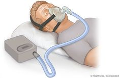 Sleep apnea is a chronic respiratory sleep disorder that is commonly characterized by disruption of breathing while sleeping. This is characterized by conditions such as shallow periods of breathing or occurrence of breaks and pauses during sleep. Sleep Apnea In Children, Insomnia In Children, Causes Of Sleep Apnea, Home Remedies For Snoring, Sleep Apnea Remedies, Trying To Sleep, How To Get Sleep, Sleep Apnea Devices, Circadian Rhythm Sleep Disorder