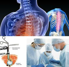 2015's Global #SpineSurgery Devices Industry #MarketResearchReport