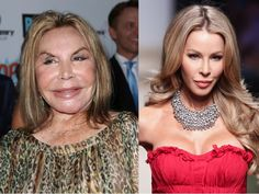 Celebrity Plastic Surgery: Cosmetic Surgery Gone Wrong. Is it just me or is the latest Real Housewives of Miami plastic surgery just awful?