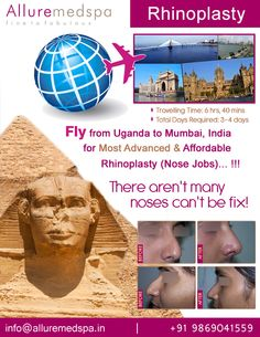 Rhinoplasty is procedure to reshape your nose. It can absolutely change the face, confidence and enhance your beauty by Celebrity Rhinoplasty surgeon Dr. Milan Doshi. Fly to India for rhinoplasty surgery (also known as nose reshaping, nose job) at affordable price/cost compare to Kampala, Lugazi,UGANDA at Alluremedspa, Mumbai, India.   For more info- http://www.Alluremedspa-Uganda.com/cosmetic-surgery/face-surgery/rhinoplasty.html