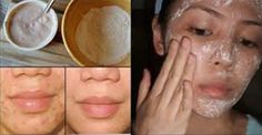 How To Remove The Acne Scars, Wrinkles And Stains With This Mask In A Record Time!