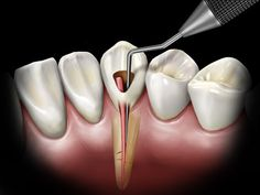Spiteful Dental Crowns Before And After Life Dental Life, Dental Art, Dental Humor, Dental Hygienist, Dental Surgery, Dental Implants, Dental Images, Dental Videos, Teeth Whitening That Works