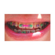 How to Choose the Color of Your Braces ❤ liked on Polyvore