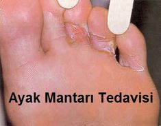 Athlete's Foot & Nail Fungus - 1 Drop Lemongrass 1 Drop Melaleuca 1 Drops Lavender 1 teaspoon carrier oil Apply this mixture 3 times a day until the fungus is gone. Natural Home Remedies, Natural Healing, Herbal Remedies, Health Remedies, Foot Remedies, Natural Skin, Natural Medicine, Herbal Medicine, Nail Fungus