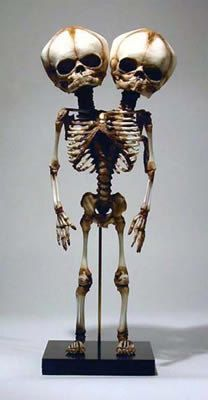 These are hand made Fetal Skeletons! The Skeletons are very, very detailed and anatomically correct too