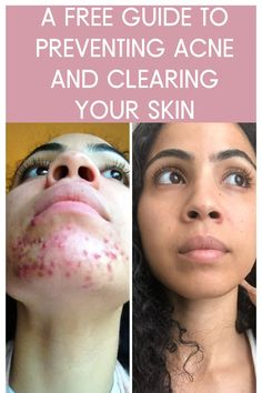 Everything I did to clear my cystic acne naturally / holistically is included in this free ebook. I'm sharing my most trusted step by step process on clearing the skin fast and effectively. This guide includes food recipes, lifestyle practices, skin care product recommendations, detox routines and more. And did I mention that it's FREE?! Chin Acne Causes, Hormonal Acne, Lavender Oil, Natural Skin Care, Your Skin, Detox, Lifestyle, People, Recipes
