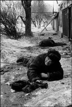 Chechen civilian injured during the first war in Chechnya.