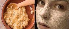 Para deixar a pele limpa não é necessário usar laser ou qualquer outro tratamento químico. Todos nós sabemos que essas alternativas podem agredir nossa saúde. Além de não serem baratas.