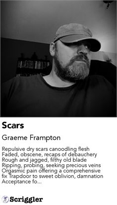 Scars by Graeme Frampton https://scriggler.com/detailPost/story/116720 Repulsive dry scars canoodling flesh Faded, obscene, recaps of debauchery Rough and jagged, filthy old blade Ripping, probing, seeking precious veins Orgasmic pain offering a comprehensive fix Trapdoor to sweet oblivion, damnation Acceptance fo...
