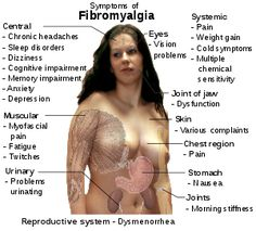 Common signs and symptoms of fibromyalgia...I have 11 of these symptoms