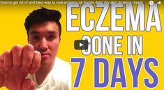 how to get rid of and best way to cure eczema on hands -best dry skin eczema cream Severe Eczema, Eczema Symptoms, Psoriasis Treatment Cream, Dry Skin Remedies, Psoriasis Remedies, Natural Remedies, Orlando, Eczema On Hands, Orlando Florida